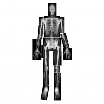 R-5911 - True To Life Human X-Rays in Human Anatomy