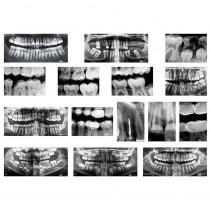 R-59269 - Dental Xrays in Human Anatomy